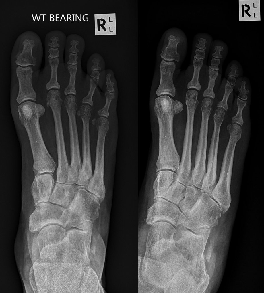 Podiatry X-Rays – Riverside Medical Imaging